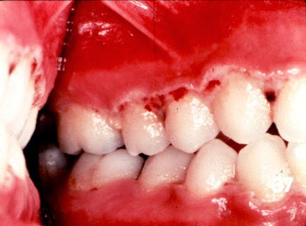 My Web Dentist - Bringing Smiles on Faces.: Classification of ANUG ...