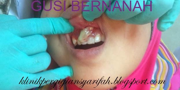 Ubat Sakit Gigi Bagi Kanak Kanak Perubatan W