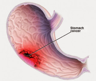 Stomach (Gastric) Cancer Causes, Types, Symptoms, Diagnosis, Treatment, Prevention