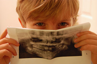 why dental xrays are important
