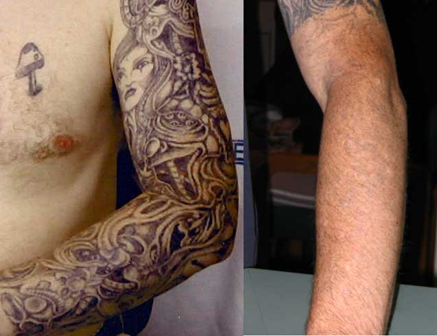 Laser tattoo removal aaron stone md plastic surgery for Laser remove tattoo price