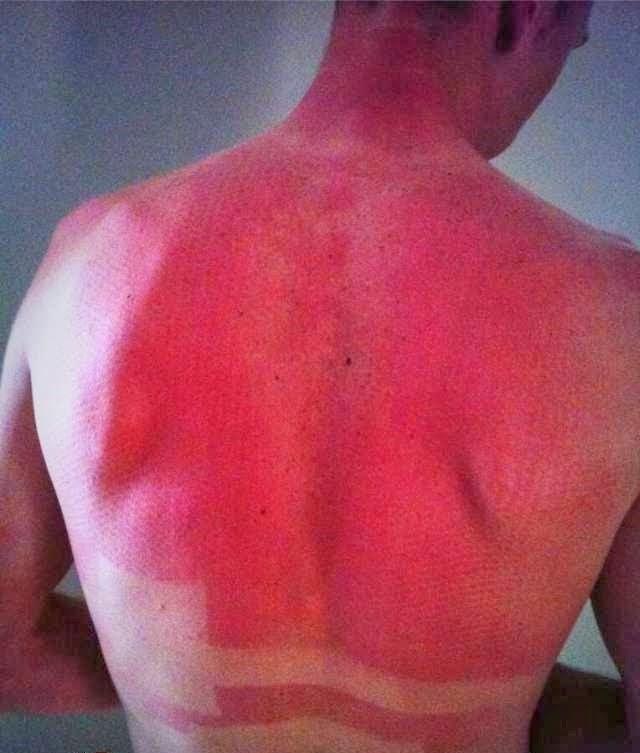 O que acontece quando branquelos vão à praia no primeiro dia de ferias de verão