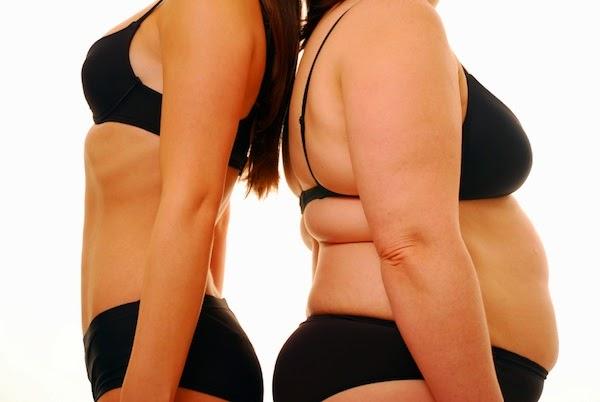 El sobrepeso en trasplantados