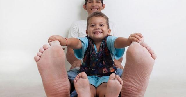 Calza 60 y se trata de la persona con los pies más grandes del mundo