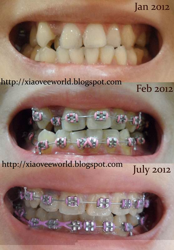 akibat pasang kawat gigi