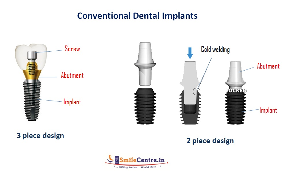 DR Murugavel's dental implant course-2.bp.blogspot.com
