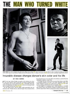 Um Dançarino Negro Que Ficou Branco.