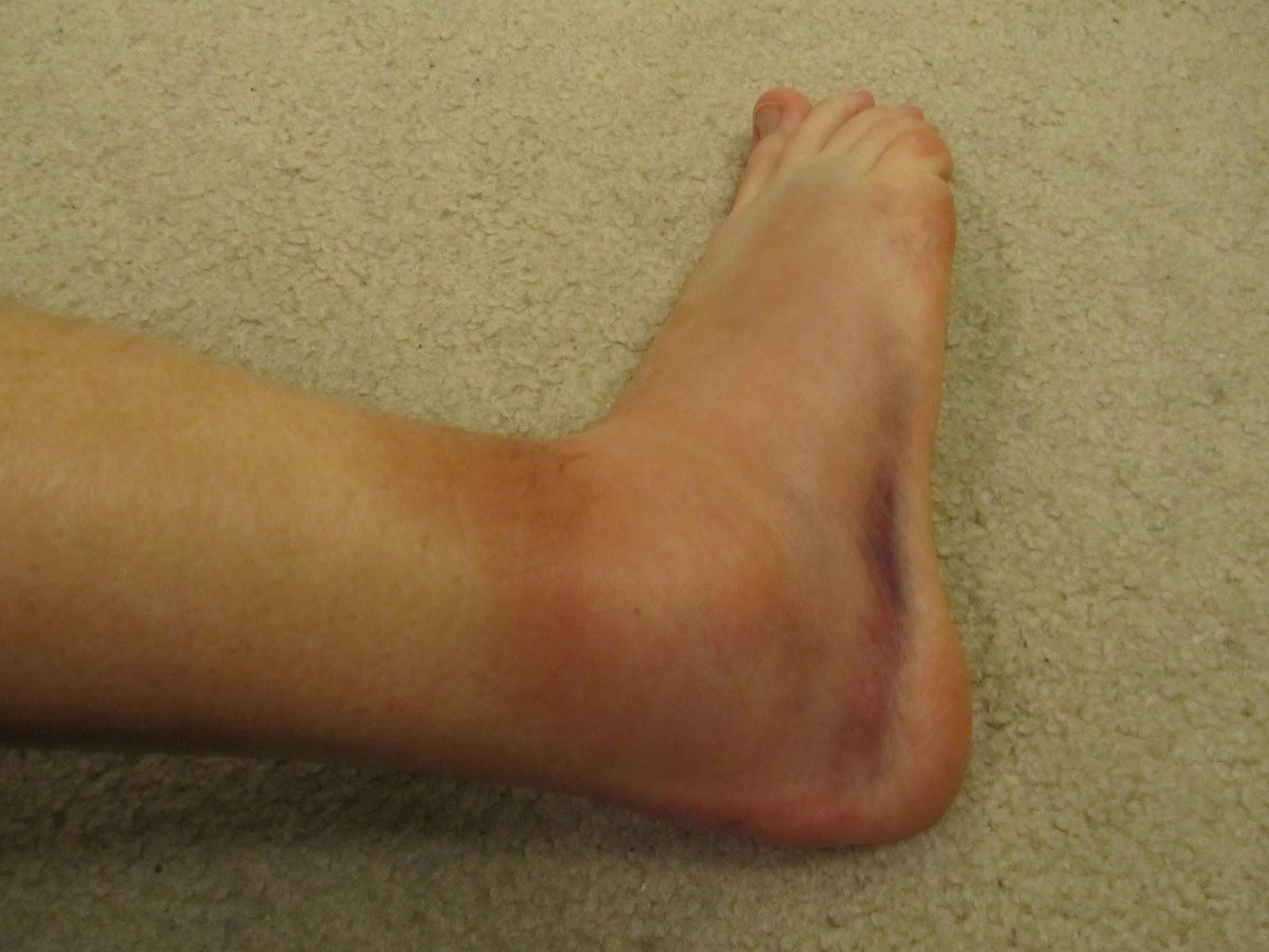 Broken Ankles Basketball Related Keywords & Suggestions - Broken ...
