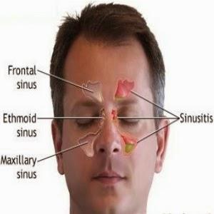 Cara Cepat mengobati Penyakit Sinusitis