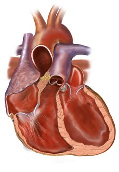 Nanda Nurse Diary: Nanda - Decreased Cardiac Output - NCP CHF