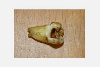 John Lenon's Teeth Maryland Dentists
