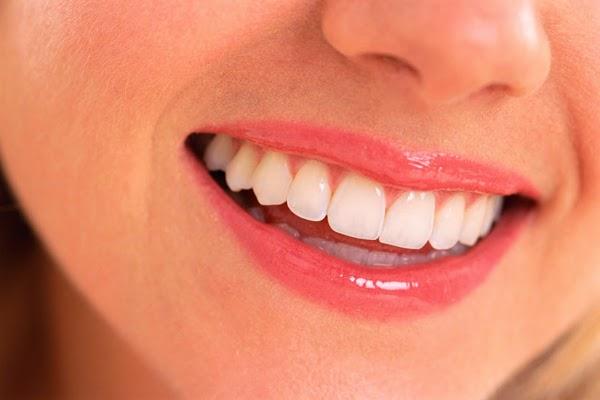 Cara Memutihkan Gigi Dengan Mudah Arena Terbaru