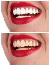 how to make teeth look whiter in iphoto