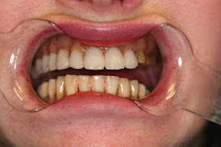 Golpa-DentalImplantCenter.com