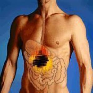 como curar úlcera no estômago