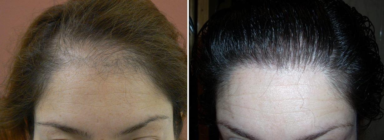 trasplante capilar alopecias femeninas. Black Bedroom Furniture Sets. Home Design Ideas