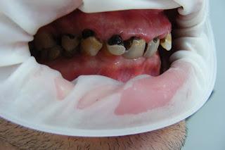 zirkonyum porselen diş yapılmadan önce