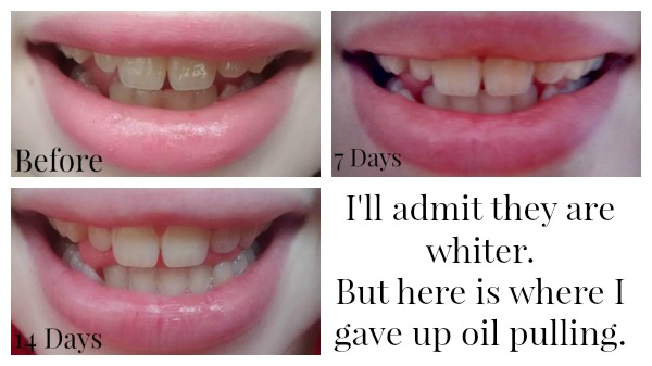 Oil Pulling Results