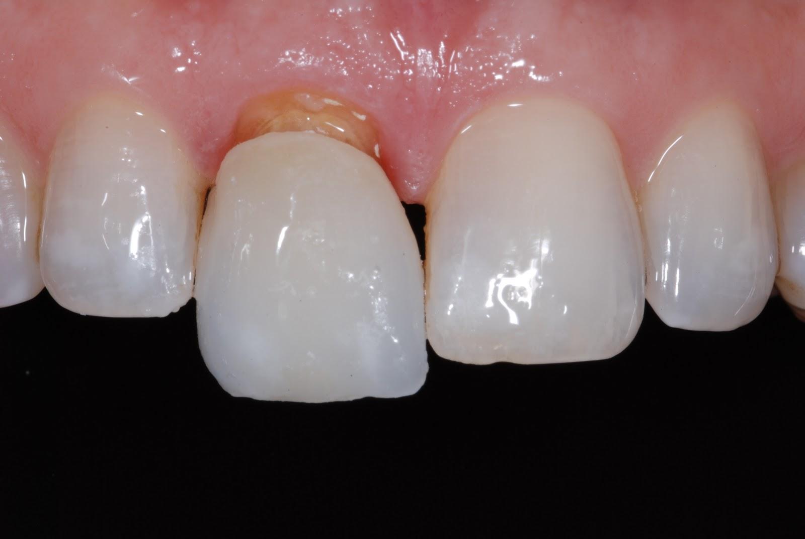Что делать, если выдвинулся зуб? Об 35