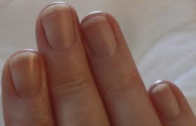 bleeding around the nails , basic fingernail care , fingernails healthy and strong , nail have problem , prevent nail damage, keep your fingernails looking their best , Do's and Don'ts for healthy nails