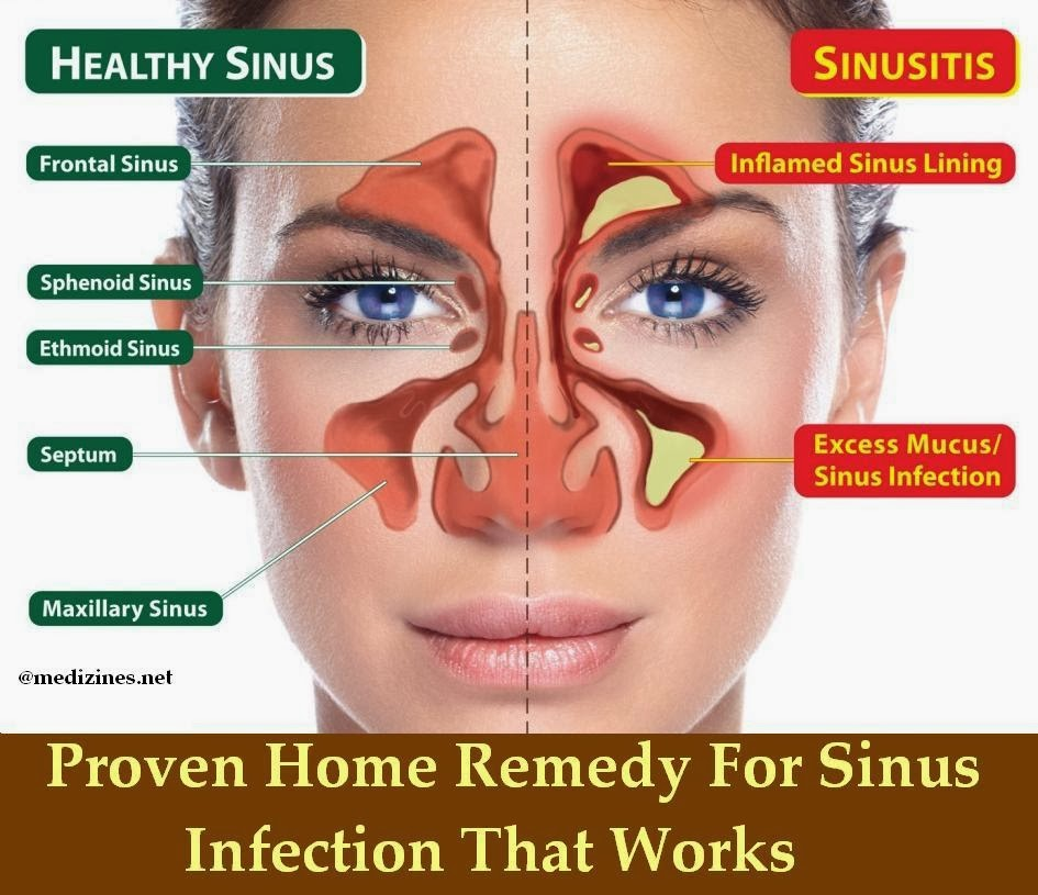 Image Result For T Home Sinus