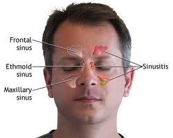 Inhalatii pentru usurarea sinuzitei — remedii naturiste