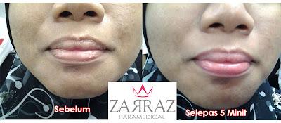 keburukan lip magic collagen, testimoni pengguna lip magic collagen zarraz paramedical, masalah bibir kering, masalah bibir hitam, kenapa bibir menjadi kering, rawatan masalah bibir