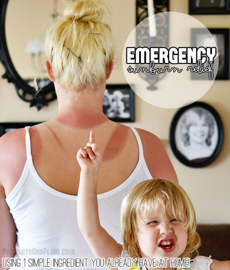 I can't believe what this simple, one ingredient home remedy for painful sunburn is!