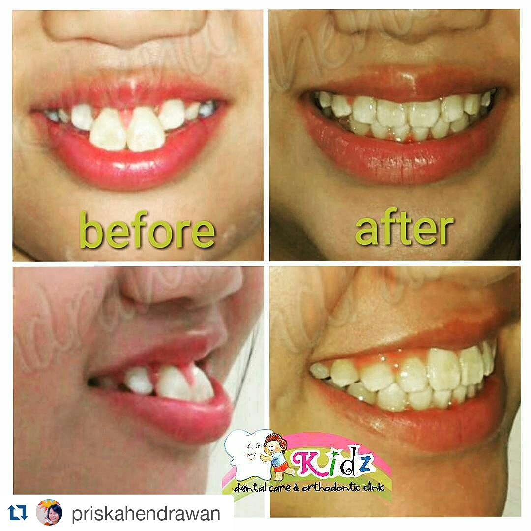 Bahaya Behel Gigi Online Shop Kidz Dental Care