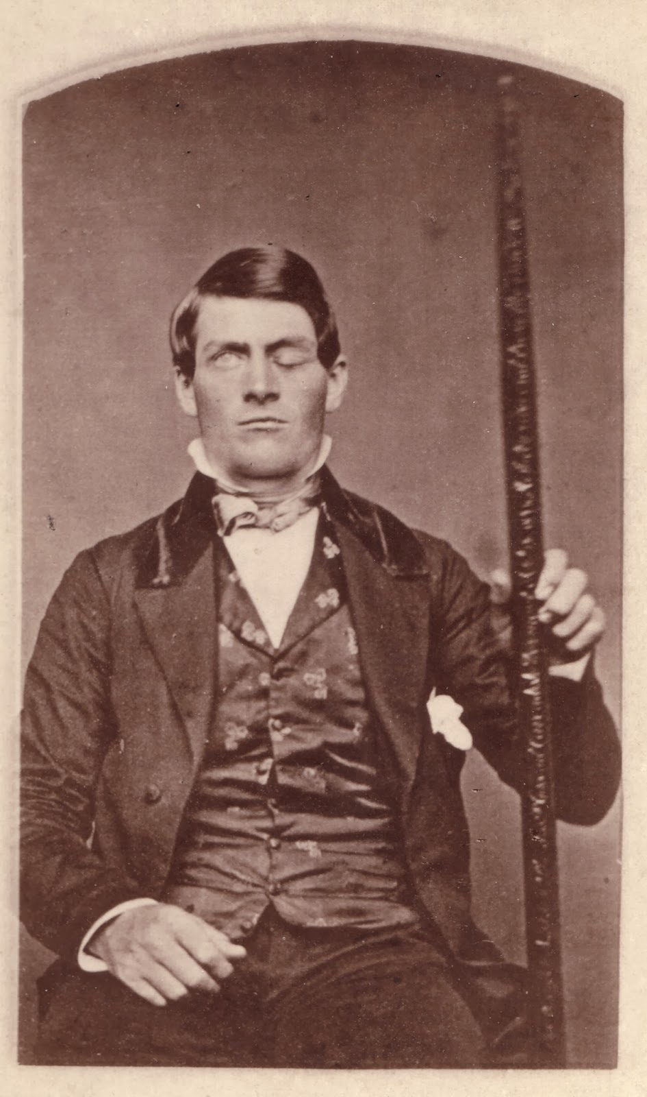 Phineas Gage and the Big-Ass Tamping Rod