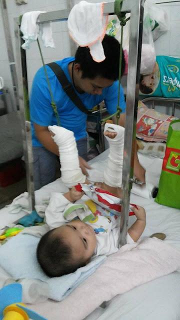 Khoa bỏng và chấn thương chỉnh hình BV NHi Đồng 2