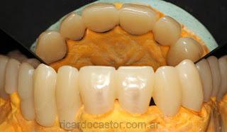 provisorios dentales con refuerzo metalico