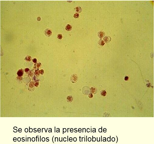 cardo mariano e acido urico problemas por acido urico bajo 300 de acido urico