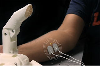 PSYONIC Develop 3D-Printed Prosthetic Hands With Sensory Feedback