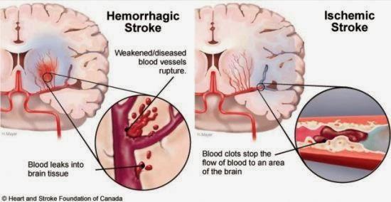 Stroke hemorrhagic dan stroke iskemik