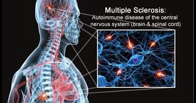 an introduction to demyelination leading to multiple sclerosis diagnosis Introduction multiple sclerosis (ms) is an autoimmune inflammatory demyelinating disease of the central nervous system that is a leading cause of disability in young.