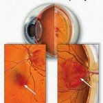 Retinopathy, Eye Health Issues in Diabetes