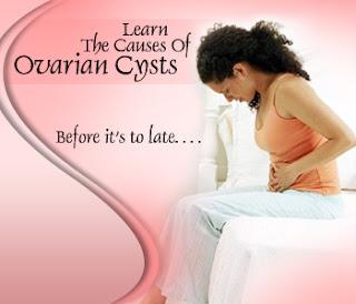 Penyebab dan Gejala Kista Ovarium