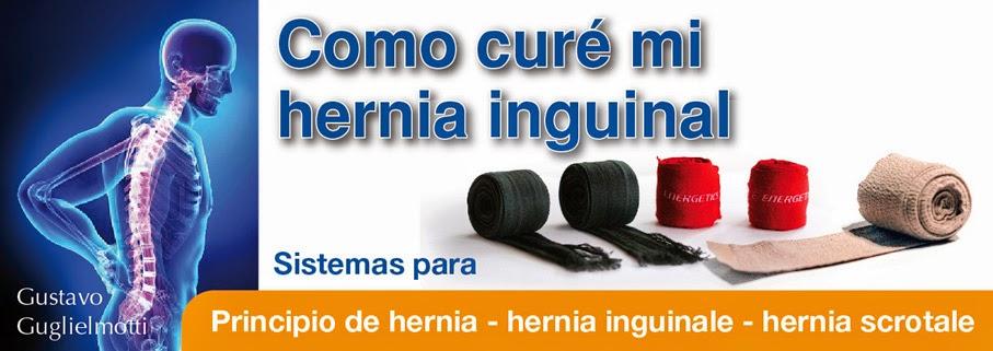 Cerrar Hernia inguinal sin cirugía
