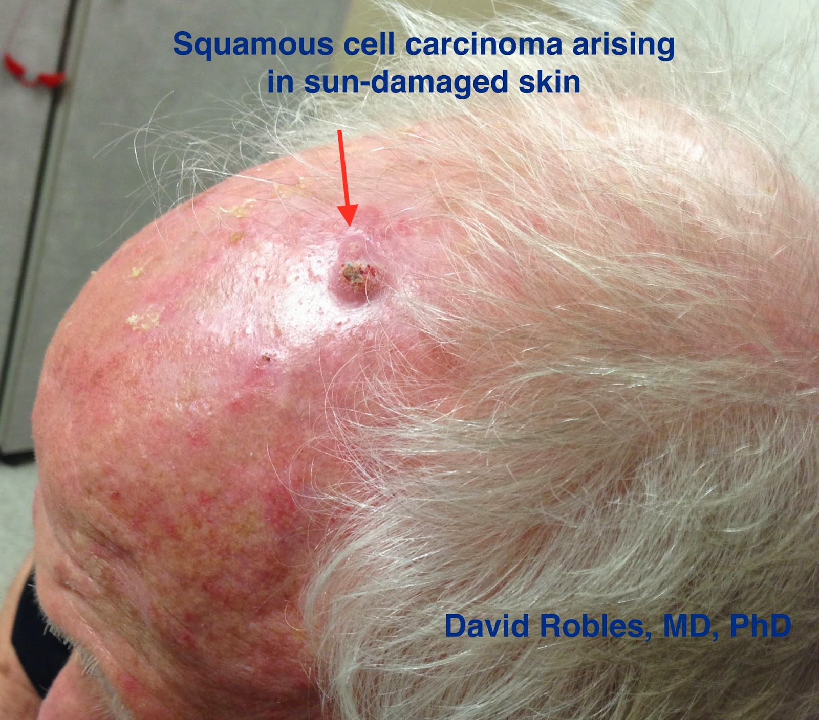 squamous cell carcinoma is the second most common skin cancer, Human Body