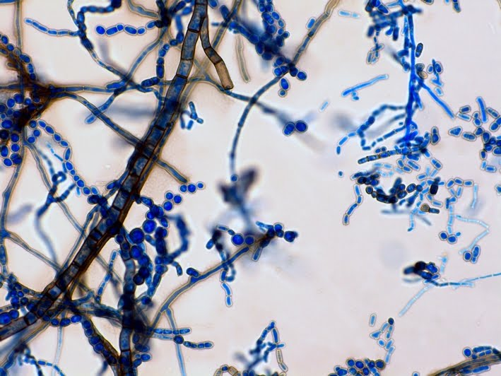 Septate Hyphae With Arthroconidia Broad Septate Branching Hyphae