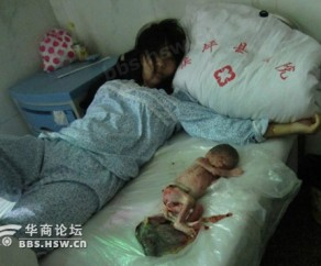 ... About: Chinese Woman with Dead Infant After Forced State Abortion
