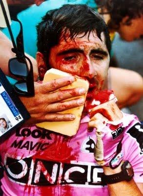Permalink to Tour De France Crash Policeman