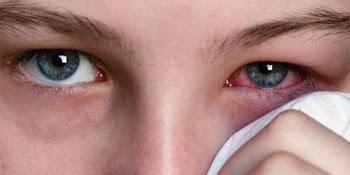 Awas Jangan Terlalu Sering Berbagi Makeup? Ini Dampaknya pada Mata