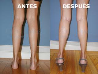 protesis_gemelos_implantes_cirujano_plastico