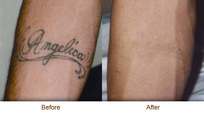 Natural Tattoo Removal: Natural Tattoo Removal Price
