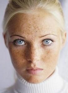 Doença de pele manchas escuras