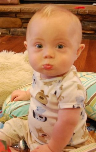 Bebês com Síndrome de Down como estimulá-los?