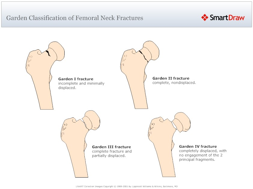 Femoral Neck Fracture Classification-2.bp.blogspot.com