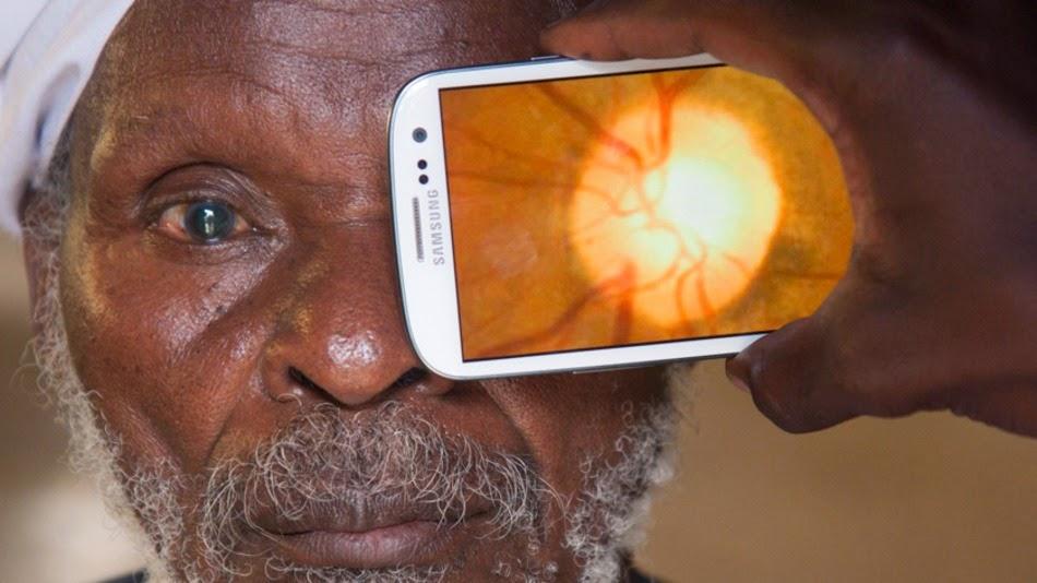 قطعة صغيرة يتم تركيبها علي كاميرا هاتفك يمكنها فحص وتشخيص أمراض العيون Peek Retina